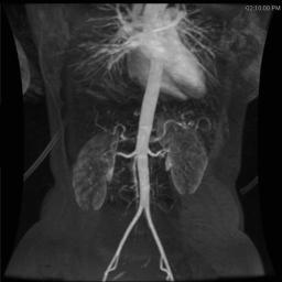 48 - angio abdomen